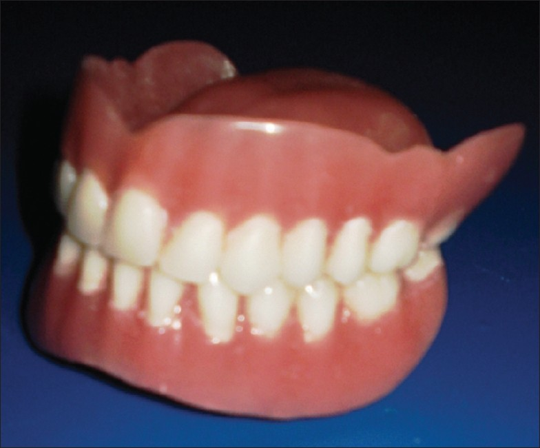 Figure 7: A view of the finished complete denture