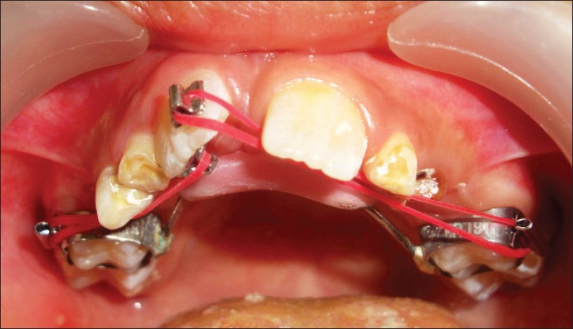 Figure 4: Beggs brackets placed on labial and palatal aspects i.r.t 11 and cross elastics engaged to molar tubes welded to molar bands.