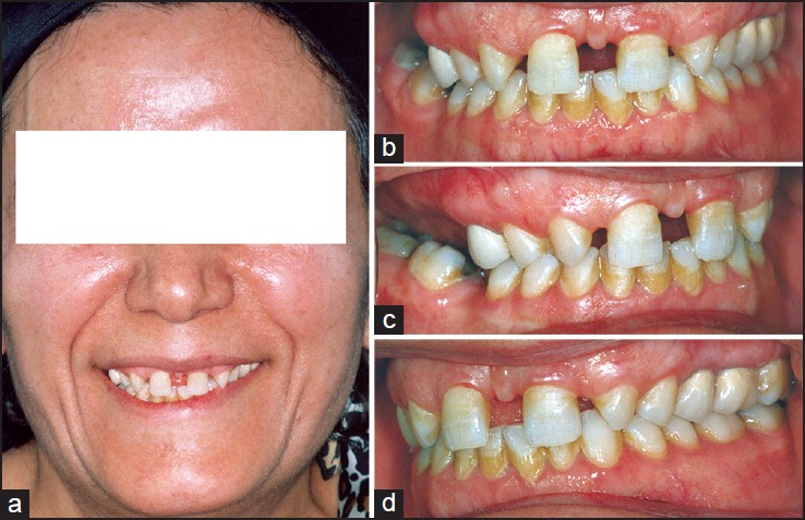 Figure 1: Pretreatment facial and intra-oral photographs (a-d)
