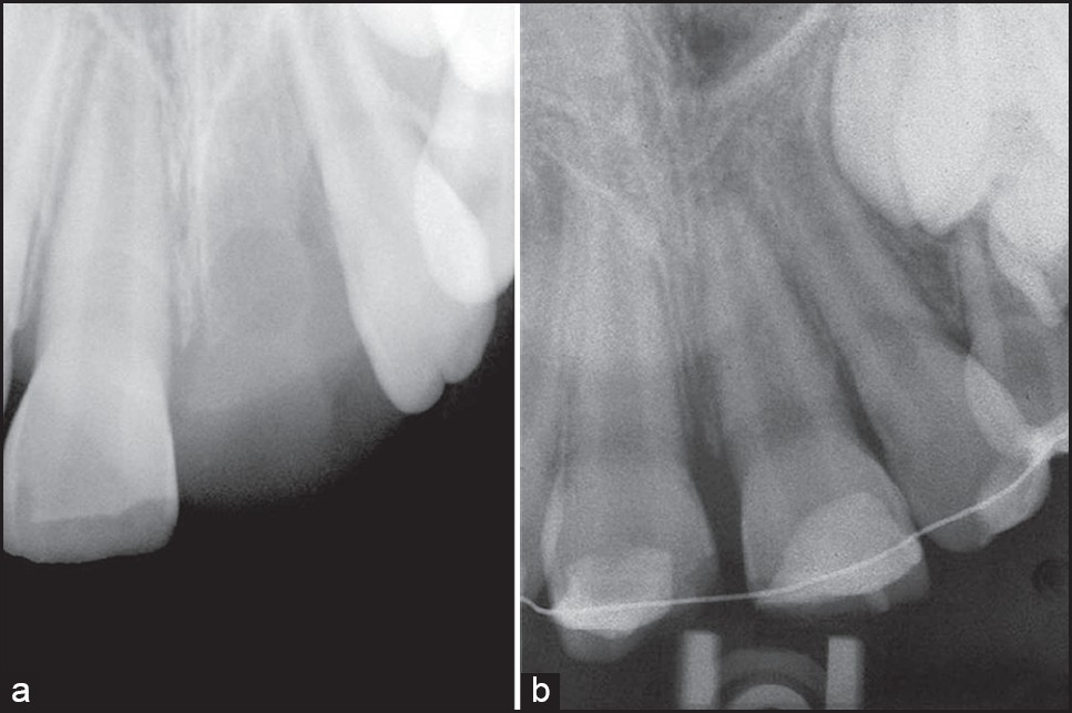 Figure 1: (a) Initial periapical radiograph revealing avulsion of the permanent maxillary left central incisor and extrusion of the permanent maxillary right central incisor (b) Periapical radiographic examination showed the immature open apices