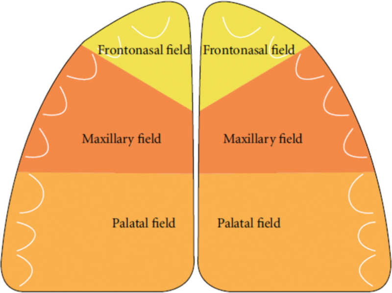 Figure 1: Schematic drawing of the human palate colored according to neural crest fields. Yellow mark the bilateral nasopalatine fields. Red marks the bilateral maxillary fields. Orange marks the bilateral palatal fields<sup>[21]</sup>