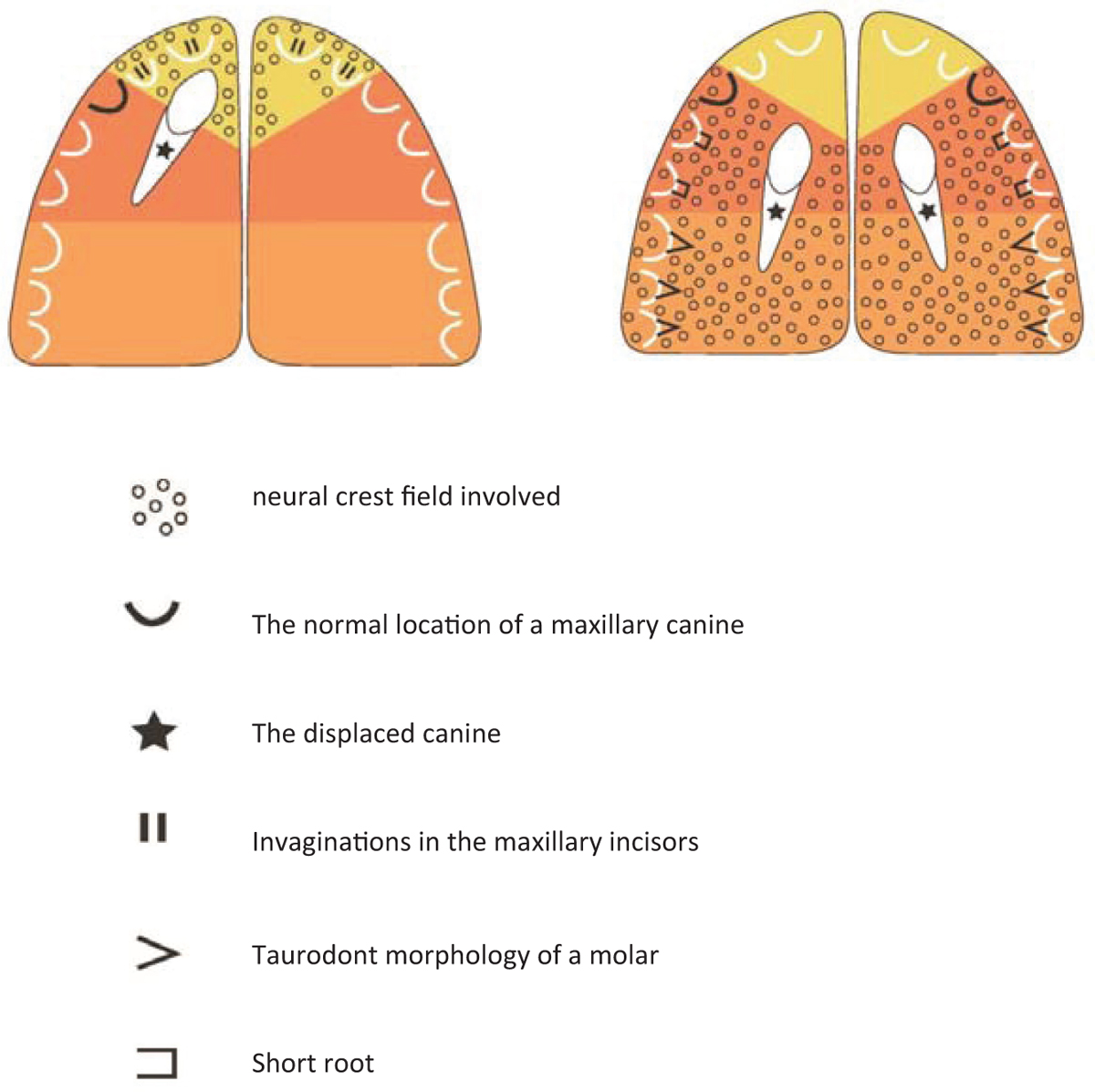 Figure 10: Schematic overview of the human palate with colored neuro-crest fields according to [Figure 1]. Left figure indicates a case with unilateral displaced maxillary canine. Right figure indicates a case with bilateral displaced maxillary canines. Note the different morphology of the incisors premolars and molars in the two different displaced conditions. Characteristic for the unilateral displaced canine case is the observation of invaginations and for the bilateral case the observations of short premolars and taurodontic molars