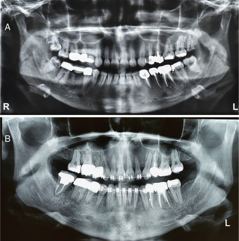 Figure 1: (a) Primary panoramic radiograph of the patient; (b) radiograph of the same patient close to the final stage of orthodontic treatment. Note that teeth #24, 34, and 44 and pontics #14 and 46 are removed. All of the wisdom teeth are extracted except tooth 48 which is saved for creating an intact dental arch. The treatment is in progress to line up the lower midline