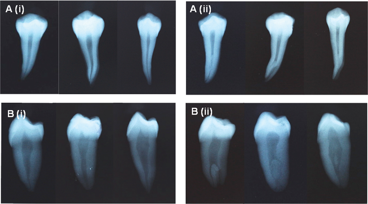 Figure 1 Representative radiographical images of (A) the mandibular premolars showing (i) single canal and (ii) disappearance of canals, narrowed or divided into two (variations) from BL view. Representative radiographical images of (B) the mandibular premolars showing (i) single canal and (ii) different canals configurations term as variations from MD view