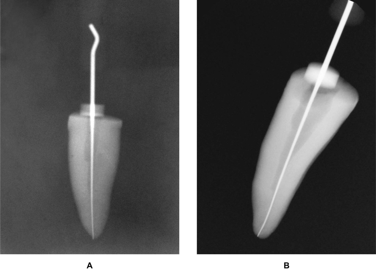 Figure 1 Working length radiograph of (A) conventional radiography and (B) radiovisiography.